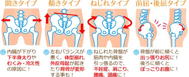 骨盤のタイプ別イラスト