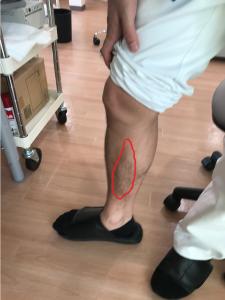 2後脛骨筋.png